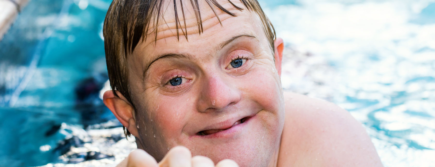 Permalink to:Supporting People with Learning Disabilities